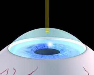 Abtrag des Epithels Die Oberflächenzellschicht wird mit dem Excimerlaser abgetragen