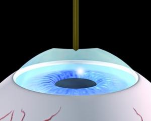 Behandlung der Hornhaut im gleichen Schritt