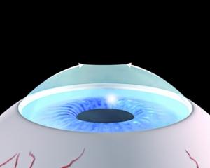 Nachsorge Die Oberfläche wird mit einer Kontaktlinse geschützt, bis die oberflächliche Zellschickt nachgewachsen ist.