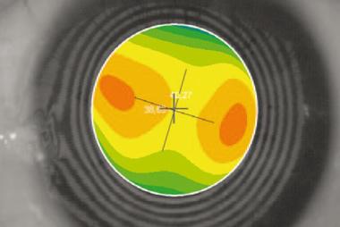 inhalte-corneal-wavefront-lasik-zentrum-pforzheim_01